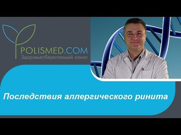 Последствия аллергического ринита: синусит. Переходит ли аллергический ринит в гайморит?