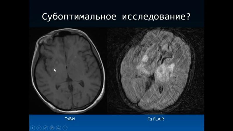 Дроздов А.А. «Дифференциальная диагностика ВИЧ индуцированных энцефалитов»