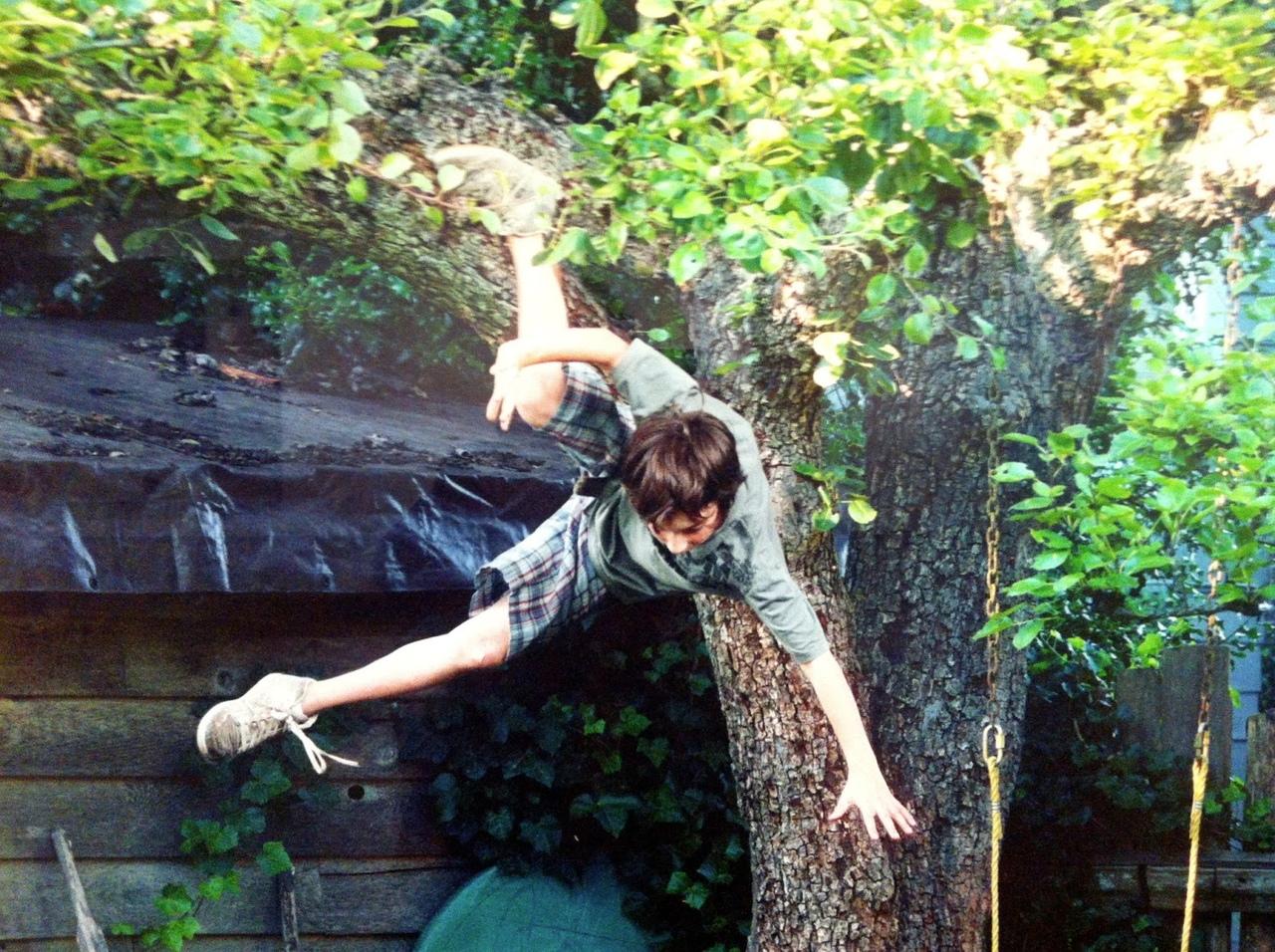 Мальчик упал с дерева и сломал плечо