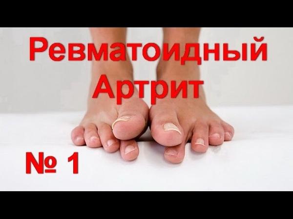 Ревматоидный артрит - № 1! Деформация пальцев ног. Как снять воспаление и боль в суставах/ed black