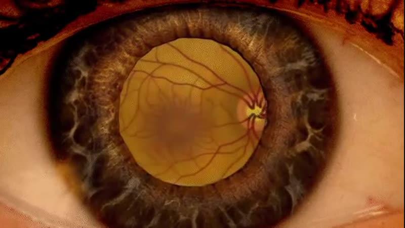 Вот что видит офтальмолог, когда расширяет вам зрачки