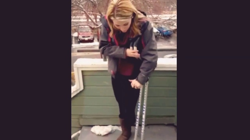 Lbk amputee girl going downstairs with crutches