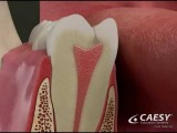 Dentist - Endodontic Abscess Root Canal