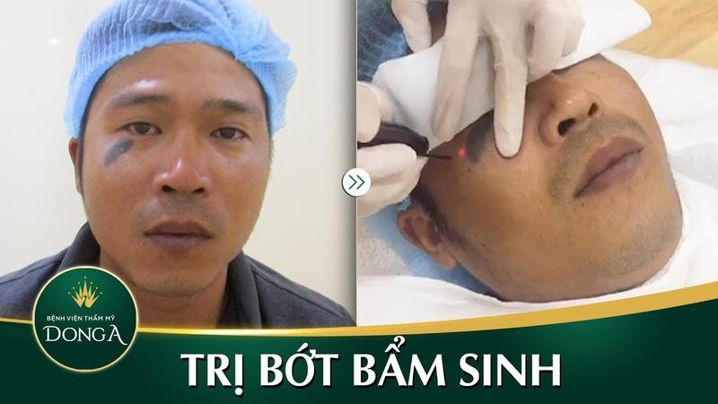 Cận cảnh ca điều trị bớt sắc tố bẩm sinh tại BVTM Đông Á - YouTube