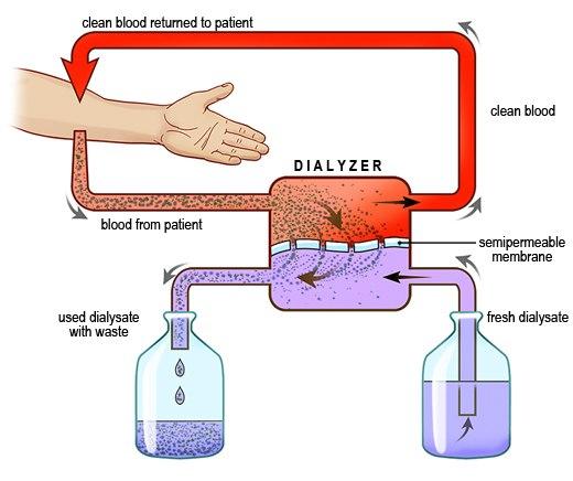 3.Выведение калия из организма