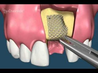 2 a Единичные дефекты верхней челюсти
