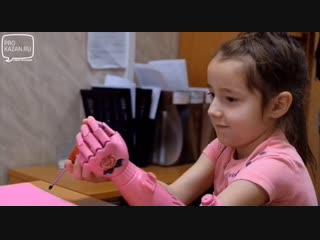 Маленькая девочка из Татарстана обрела новую руку