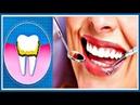 Лучшие ДОМАШНИЕ способы для УДАЛЕНИЯ зубного камня и отбеливания ЗУБОВ.