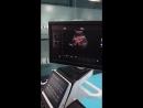Dawei DW-VET9Plus(DW-C80Plus) exam by convex probe-1