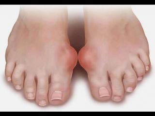 Косточки на больших пальцах ноги, причина и лечение.