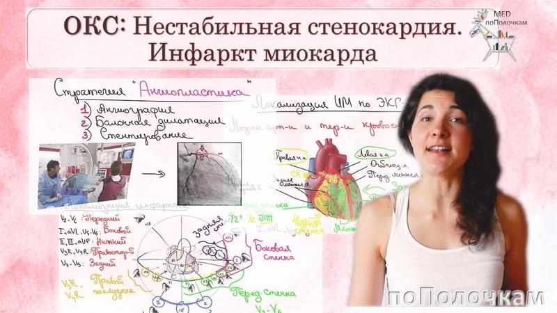 Острый коронарный синдром (ОКС) Инфаркт миокарда и нестабильная стенокардия