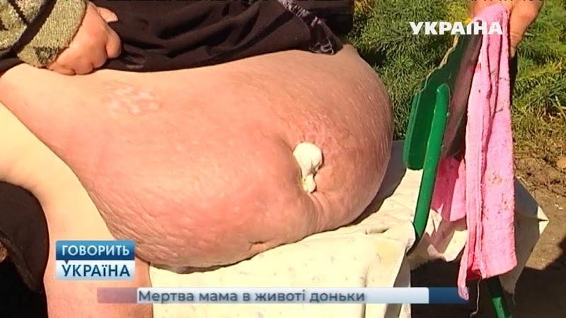 Мертвая мама в животе дочери (полный выпуск) | Говорить Україна