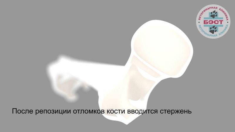 Фиксация сложного (оскольчатого) перелома диафизарного сегмента бедренной кости с использованием мостовидной пластины и интрамедулярного стержня