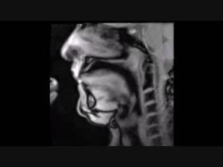 МРТ-видео показывает в реальном времени работу речевого аппарата и игру музыканта на рожке.