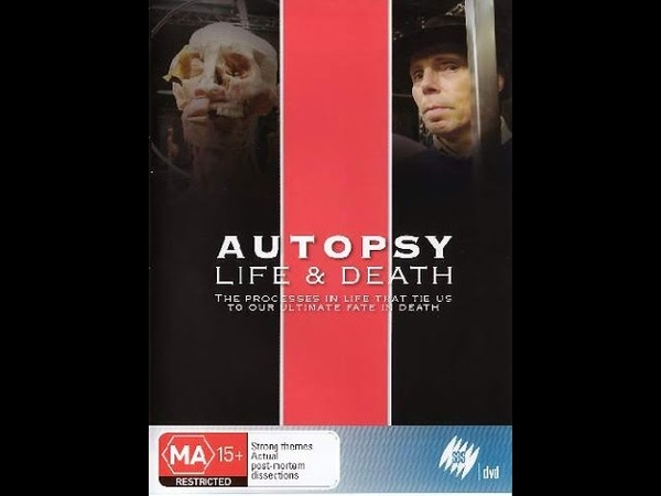 Autopsy Life and Death Episode 1 or 4 Circulation