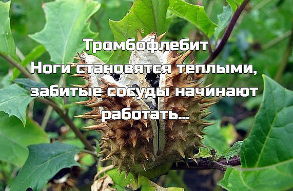 Тромбофлебит