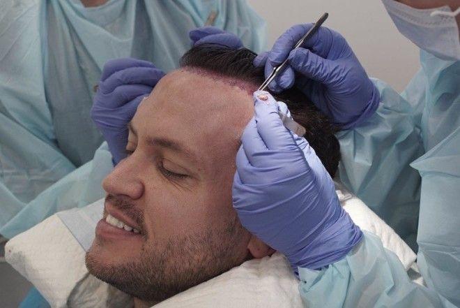 Операция по пересадке волос требует большой команды хирургов и помощников.