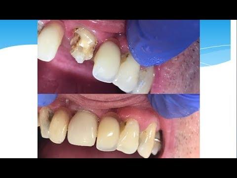Как нарастить зуб за один час