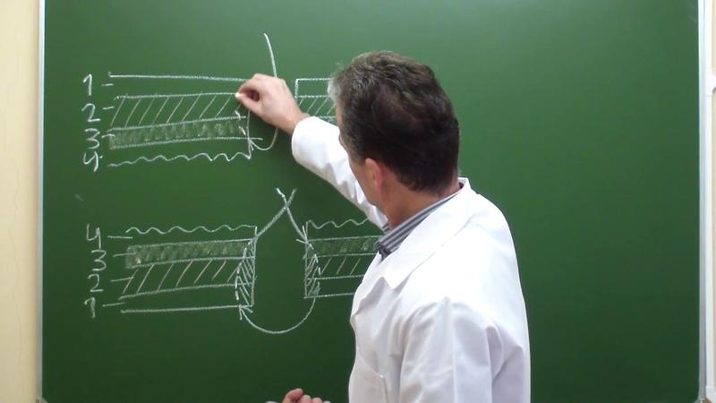 Схема однорядного шва Матешука