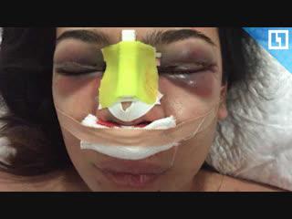 Впала в кому после пластики носа