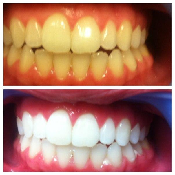 Комплекс по отбеливанию зубов в домашних условиях
