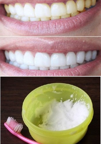 Как сделать зубы белыми быстро в домашних условиях