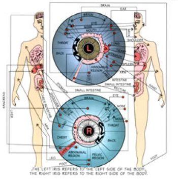 Иридодиагностика (в
