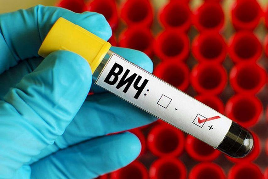 анализы на ВИЧ положительный