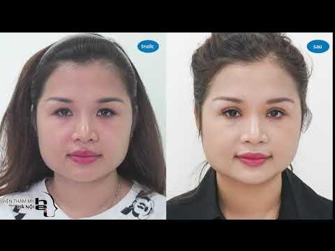 Nhấn mí - Mở rộng góc mắt - Tiêm botox thu gọn góc hàm