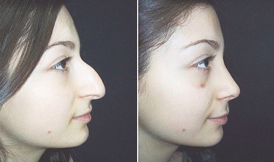 Как сделать нос ровным в домашних условиях