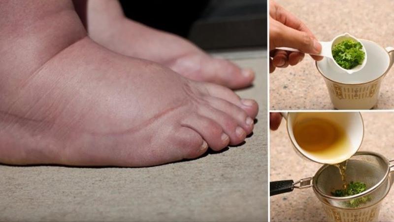 Этот мощный чай из петрушки лучшее средство для опухших ног и рук