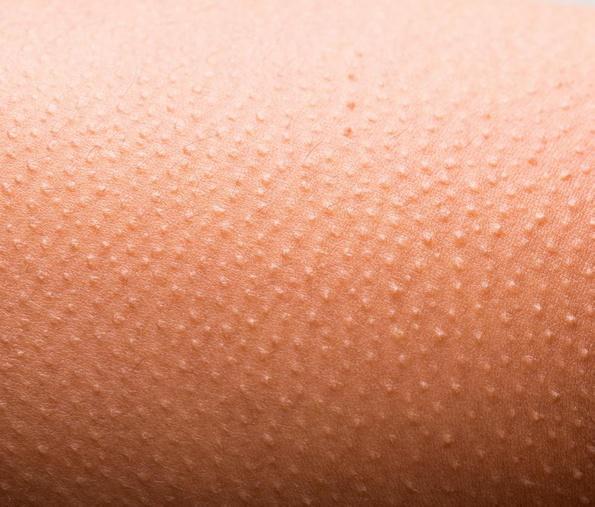 Озноб и мурашки по коже могут быть одними из первых симптомов отмены героина