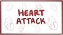 Heart attack (acute myocardial infarction) - causes, symptoms, diagnosis, treatment, pathology