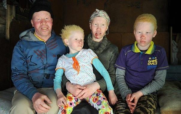 семья альбиносов из юар вынуждена жить в страхе перед охотниками за частями их тел живущая недалеко от кейптауна, юар, семья тингосе постоянно пребывает в состоянии страха и настороженности,