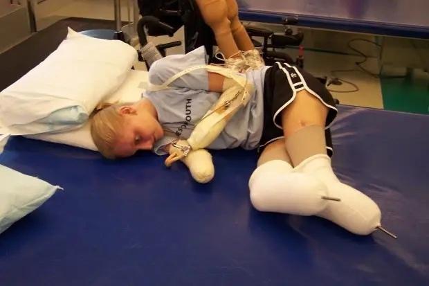 34-летняя Эрика Тамбрини потеряла руки и ноги после...