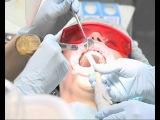 Ультразвуковая или профессиональная чистка зубов