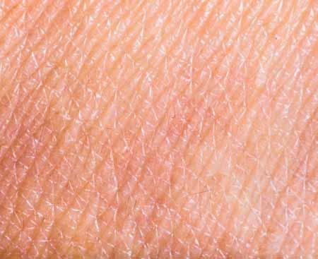Кожные наполнители используются для уменьшения появления тонких линий и морщин на коже.