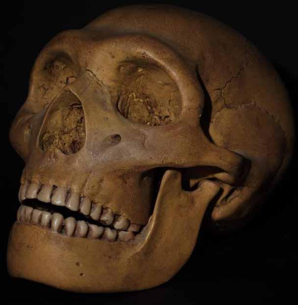 Зубы мудрости могут существовать, потому что либо потеря зуба была более распространенной в прошлом, либо челюсти были больше.
