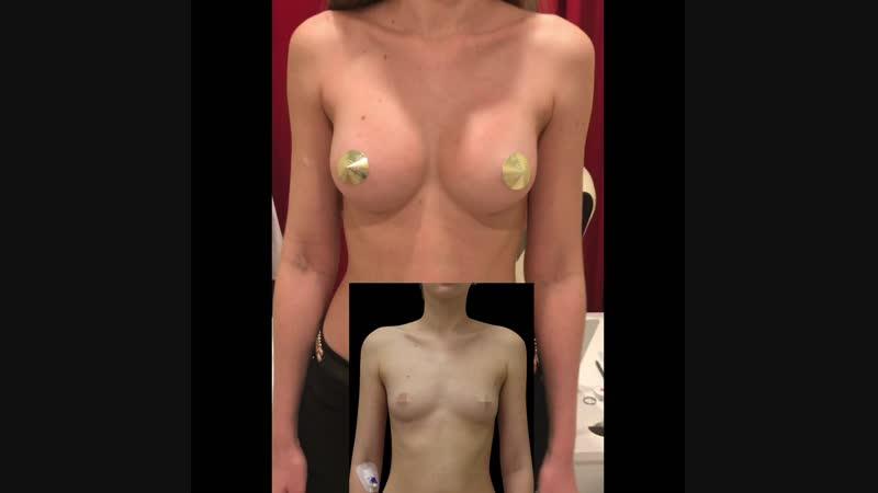 Увеличение груди анатомическими имплантами 330 мл