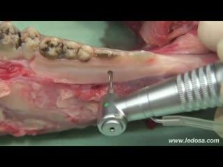 ORTOCERVERA Práctica de Mini-implantes sobre mandíbula animal. Хирургическая стоматология.Ортодонтия.