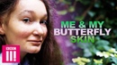 Me My Butterfly Skin | Living Differently