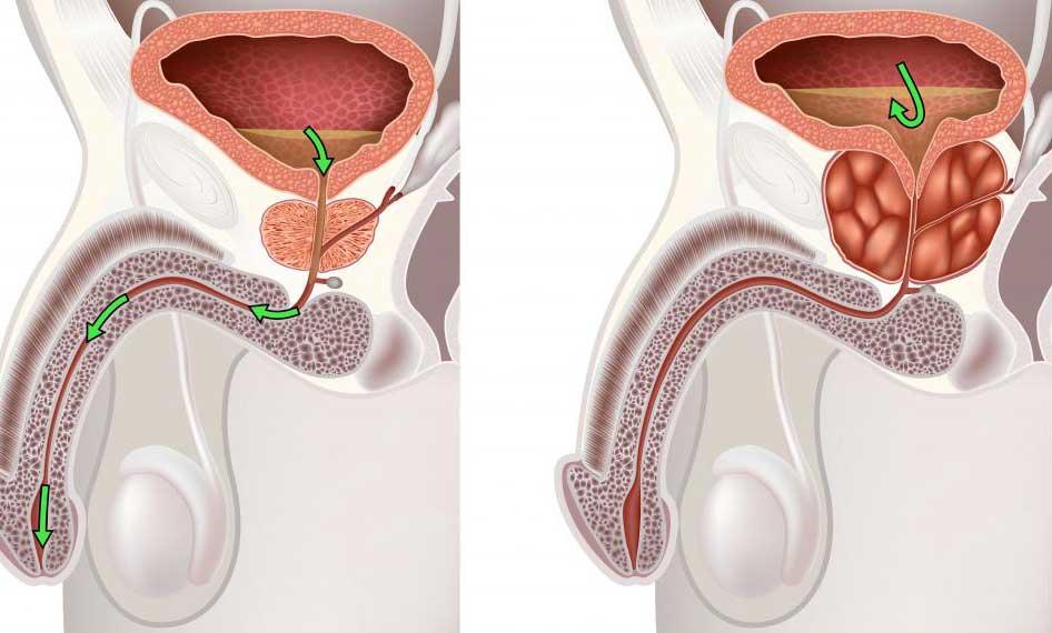 Доброкачественная гиперплазия предстательной железы относится к увеличению предстательной железы.