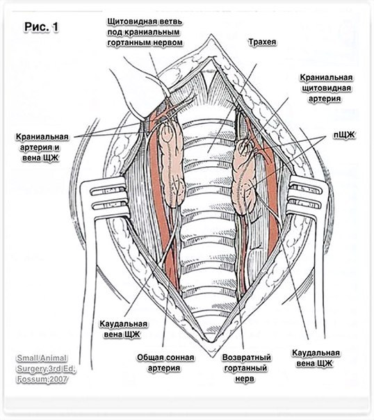Тиреоидэктомия фото