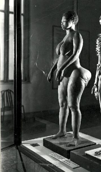 Анатомические особенности женщины из африканского народа готтентотов. Саарти Баартман была привезена в Европу из Южной Африки в начале XIX века и её выставляли в паноптикумах на показ публике