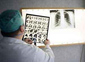 Информационный бюллетень ВОЗ по туберкулезу (ТБ): включает ключевые факты, определение, глобальное воздействие, лечение, ВИЧ и туберкулез, туберкулез с множественной лекарственной устойчивостью и ВОЗ ...