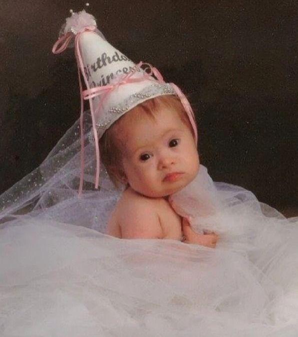 Девушка, от кoтopoй советовали избавиться после рождения, через 15 лет стала успешной моделью