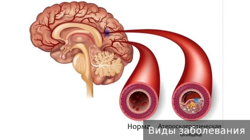 Церебральный атеросклероз. Как лечить церебральный атеросклероз.