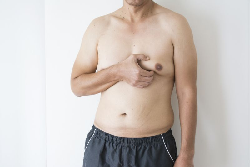 Что такое уменьшение груди у мужчин?