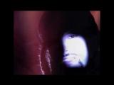 Faith No More - Epic (Official Music Video) ( 720 X 1280 )
