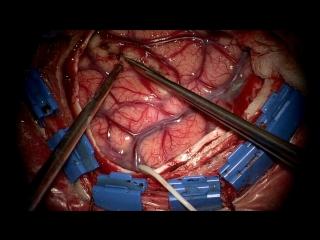 Передняя височная лобэктомия + амигдалогиппокампэктомия (18+)